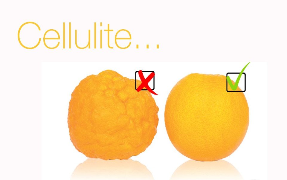 cellulite-stop